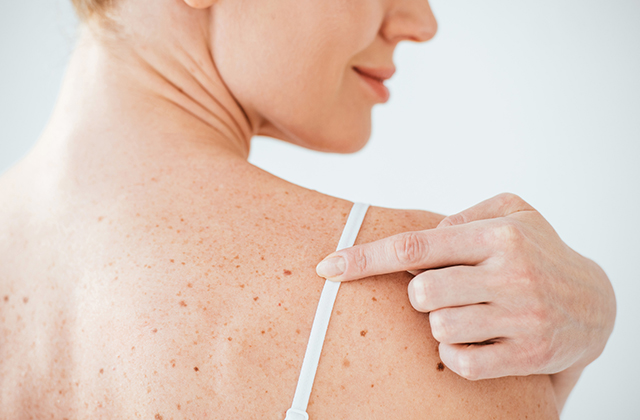 All About Laser Tattoo Removal Method